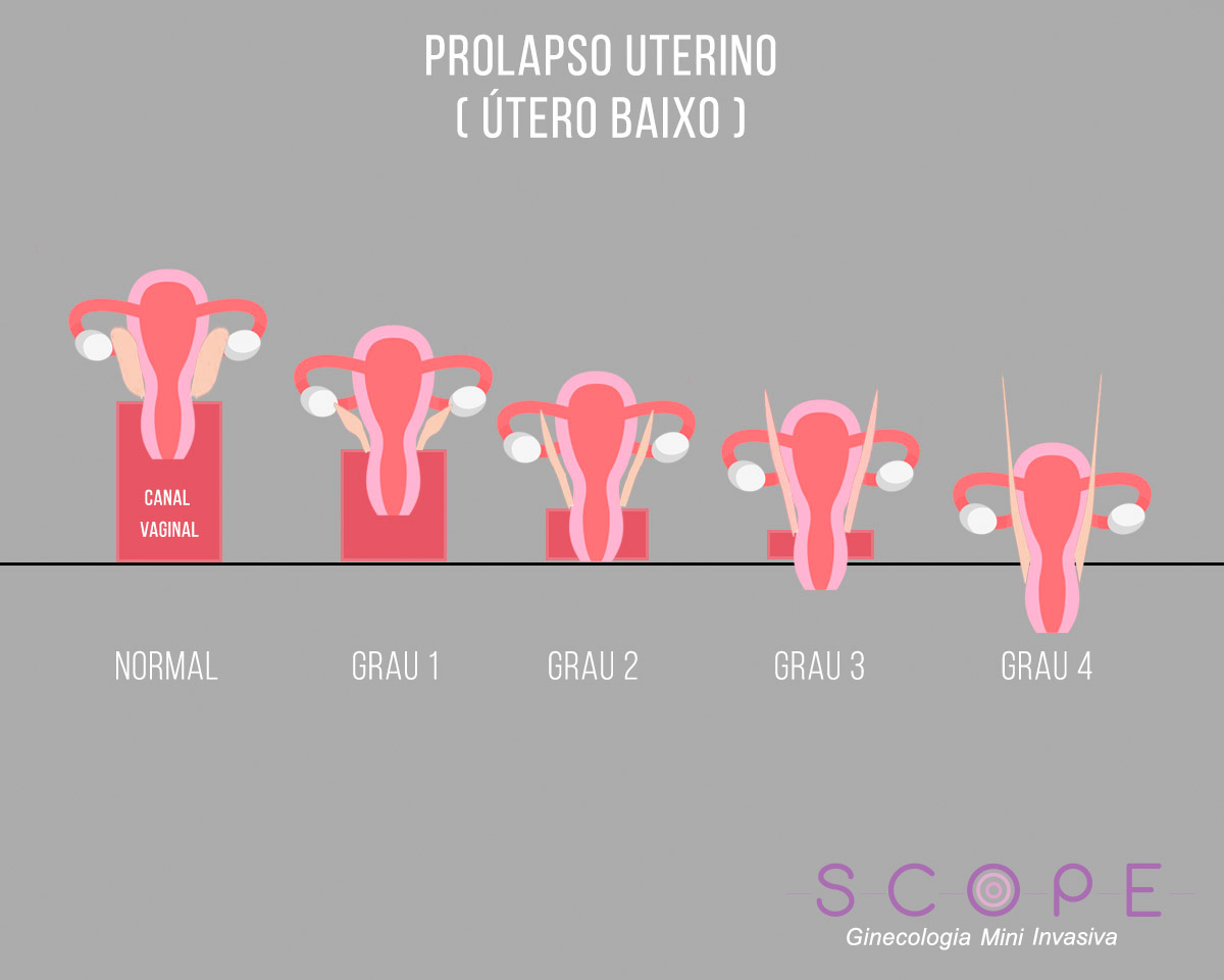 Prolapso uterino: conheça causas e tratamentos
