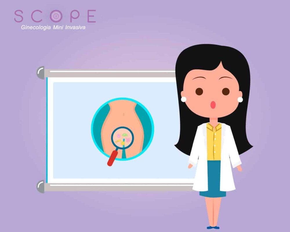 Endometriose: nova pesquisa associa doença a desequilíbrio bacteriano